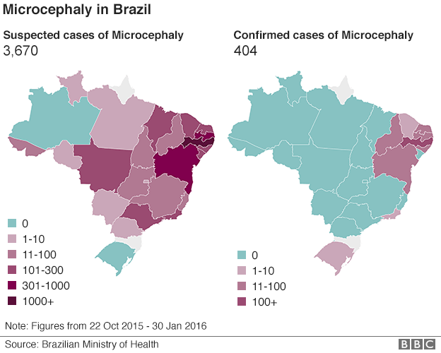 number of microcephaly cases brazil